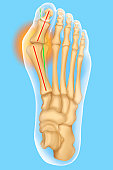 Hallux Valgus, Illustration